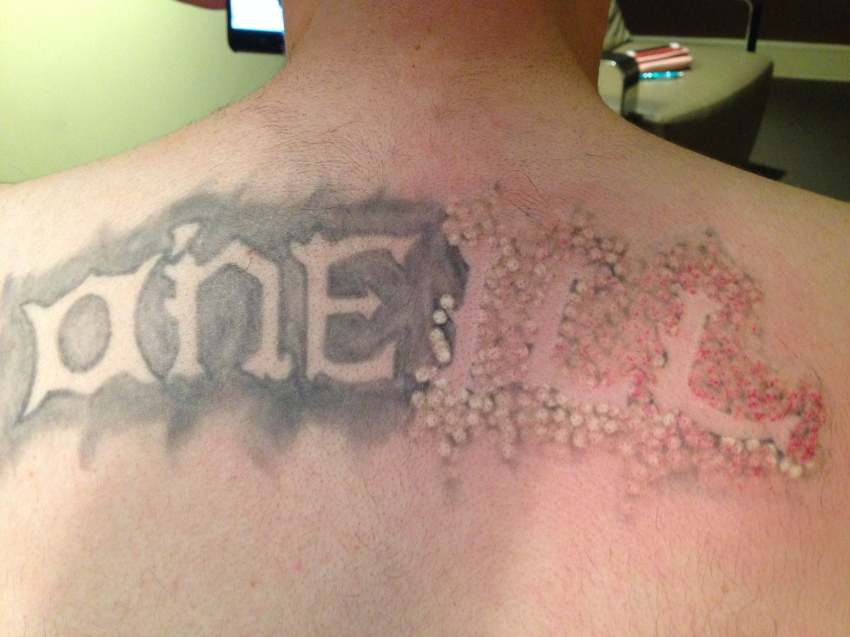 Bodyclinic Tattoo Removal Wa In Somerville Read 1 Review