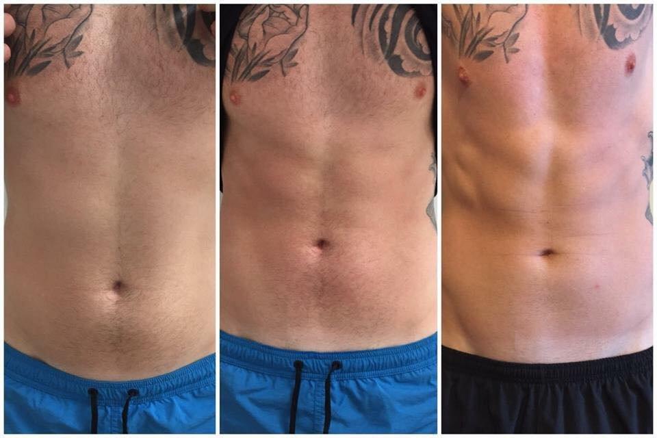 Pure skin laser clinic private body treatment salon in for 6 degrees salon portsmouth