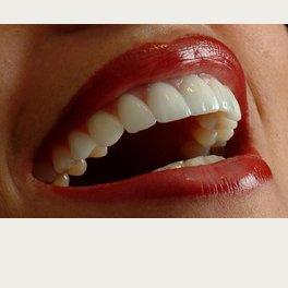 The Hong Kong Japanese Dental Clinic - Perfect Smile
