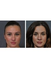 Dr Darryl J Hodgkinson - Before and after 2 months Rhinoplasty