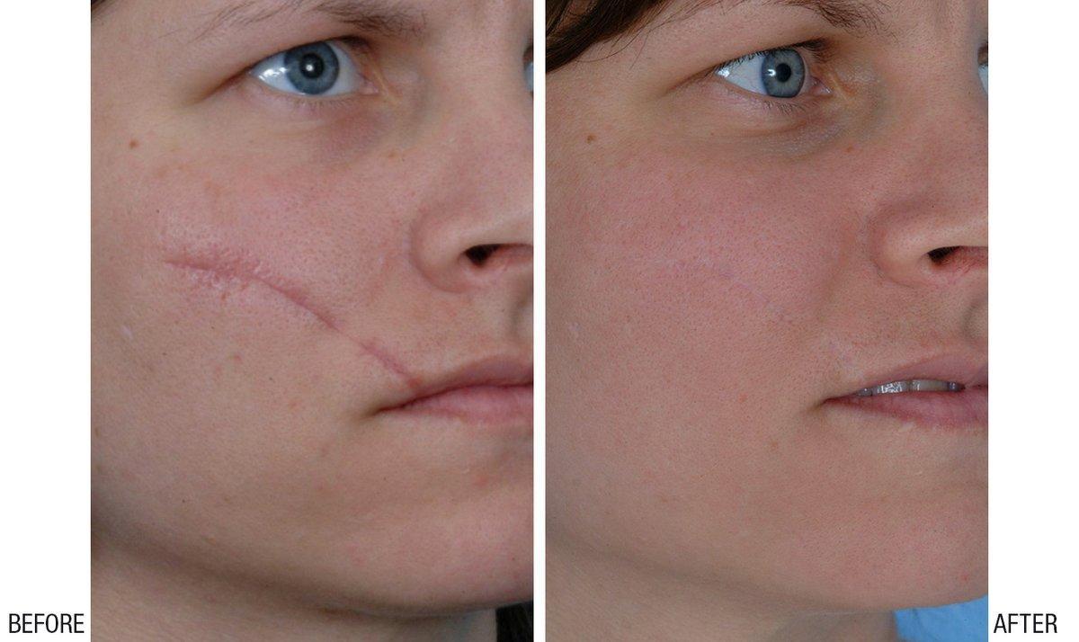 Alka Cosmetic Dermatology In Latipur Nepal
