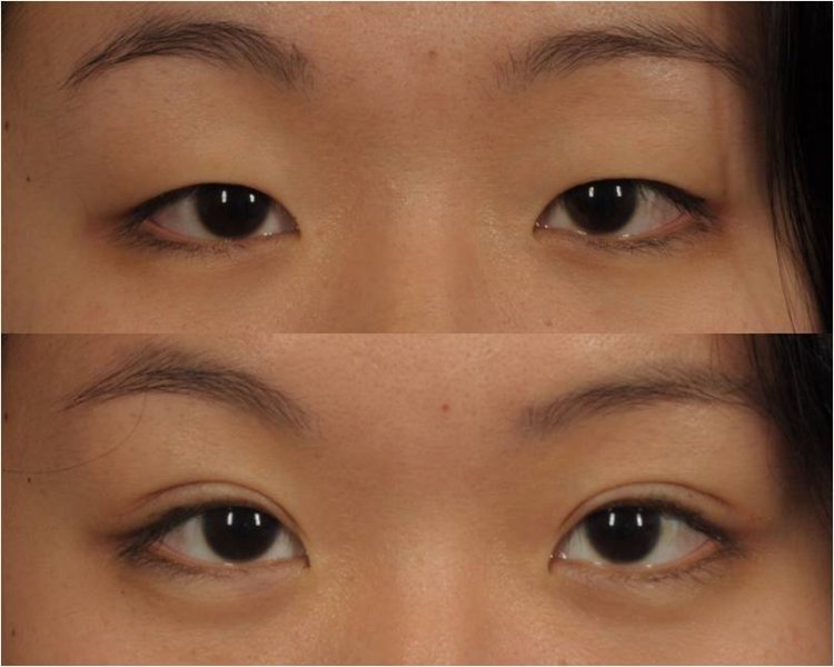 alka cosmetic dermatology   plastic surgery clinic in