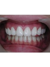 The Hong Kong Japanese Dental Clinic - Smile Makeover-Zirconia Crowns (Sweden).