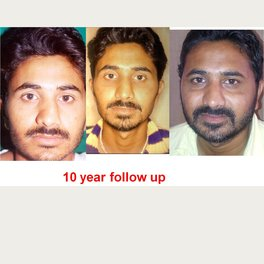 The Nose Clinic - Rhinoplasty -25 years of experience