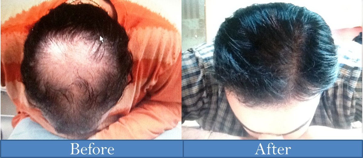 Hair transplant in mumbai low cost