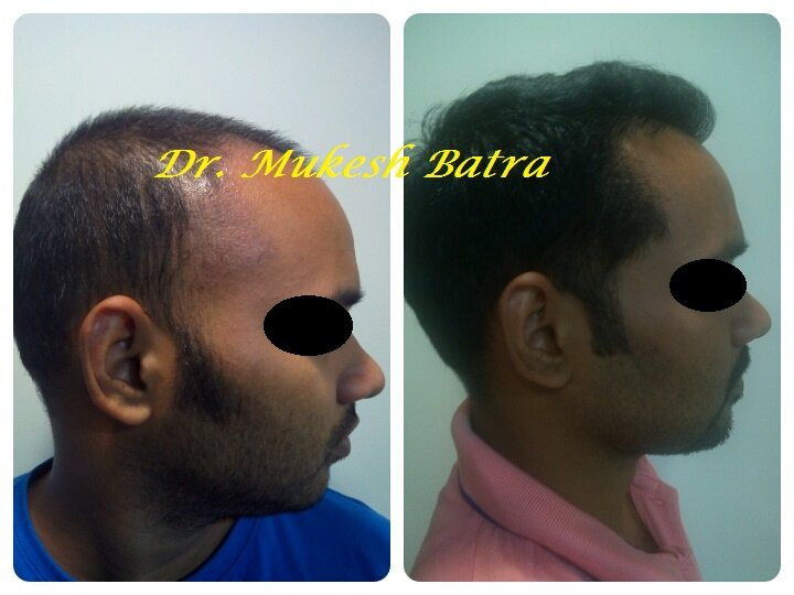 Hair transplant in mumbai female