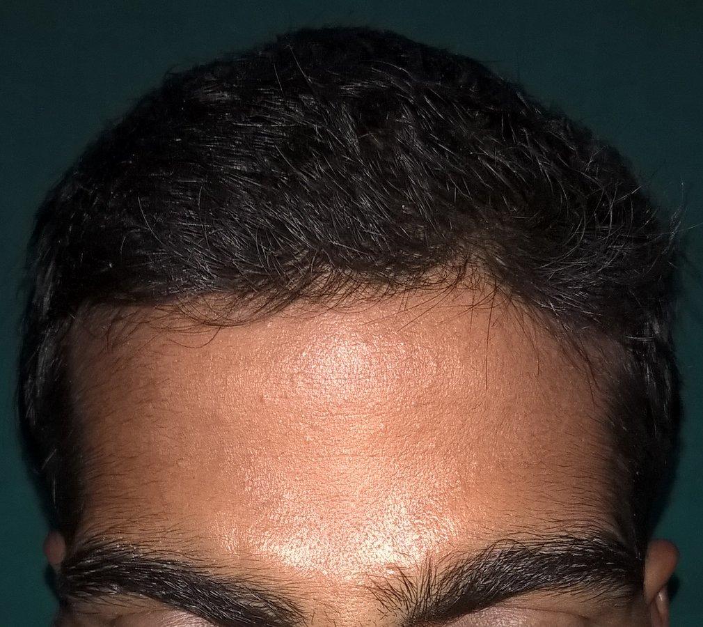Hair transplant in mumbai navi mumbai maharashtra