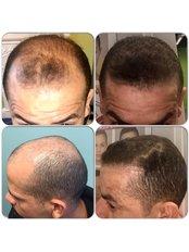 Capital Hair Restoration - Dublin - FUE Hair Transplant