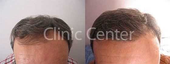 Celebrity Clients Having Hair Transplant in Turkey