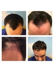Better Hair Transplant Clinics - London - image 0