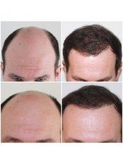 Capital Hair Restoration - London - 4000 Graft FUE Procedure