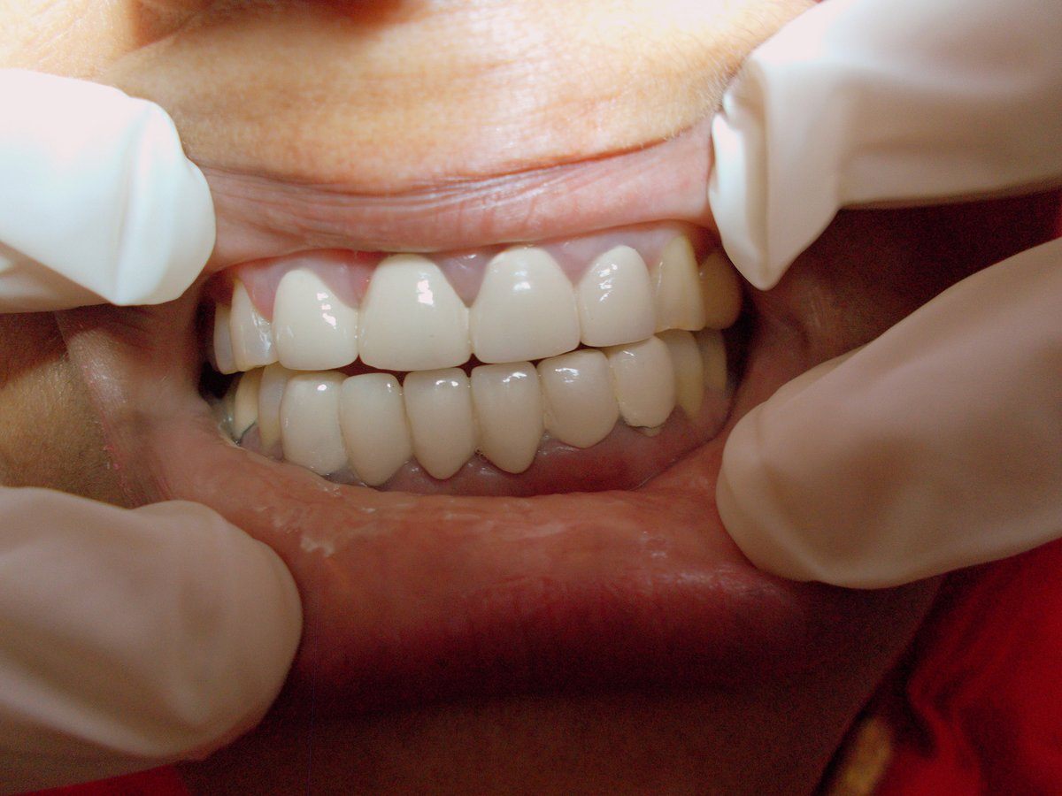 Relax Dental Spa Implant Dentist In Agra Whatclinic Com