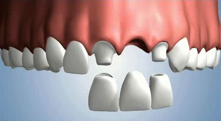 Crowns And Bridges In New Braunfels in addition Straight Teeth Options in addition Teeth Grinding furthermore Cosmetic Bonding also Watch. on missing crown dental