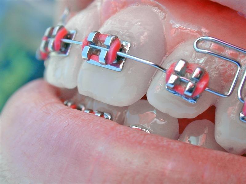 Center Of Dental Expertise Orthodontist In Athens
