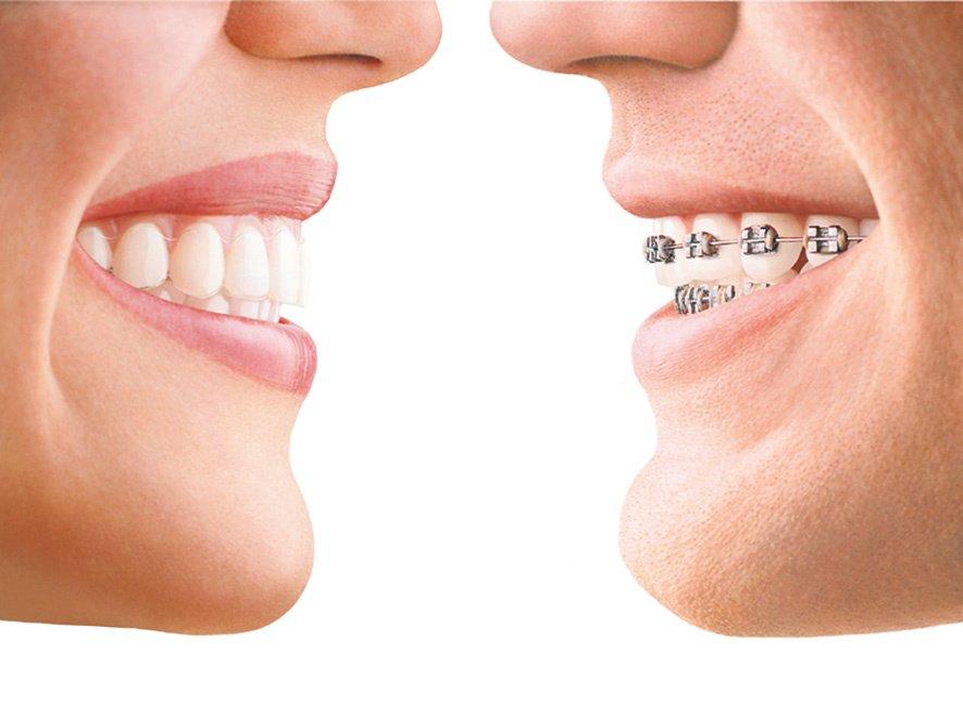Nenagh Dental Orthodontist In Nenagh Whatclinic Com