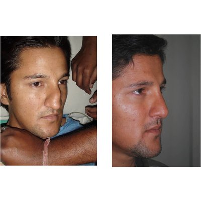The Nose Clinic - image1