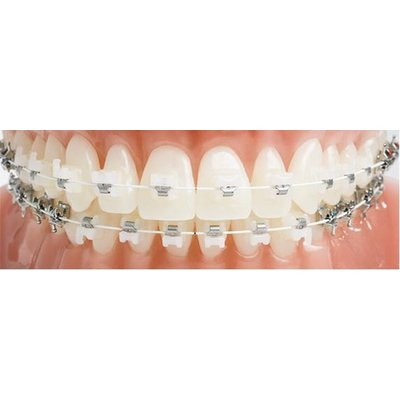 Jain Dental Hospital and Oral Health Care Centre - ceramic  braces